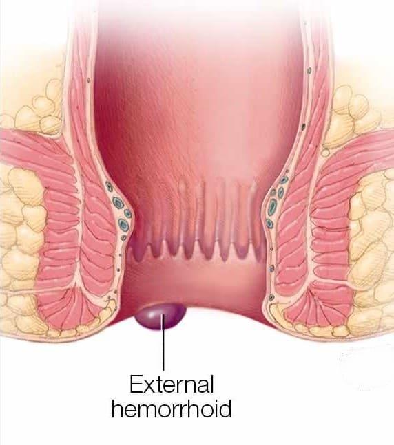 external heamorrhoid
