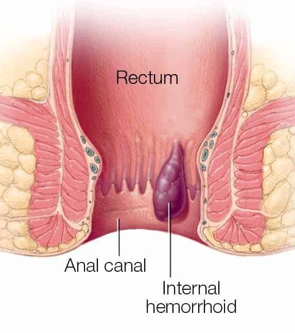 internal hemorrhoid